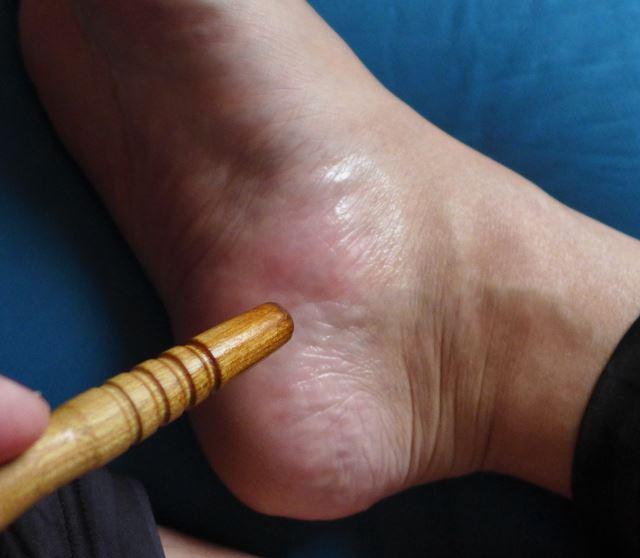 足の側面にある膀胱のツボや尿道のツボ
